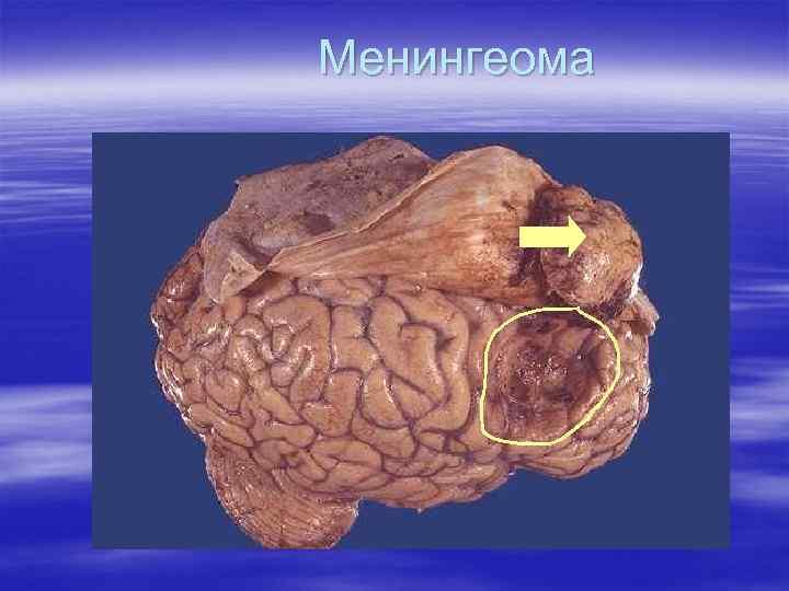 Менингеома