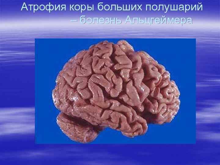 Атрофия коры больших полушарий – болезнь Альцгеймера