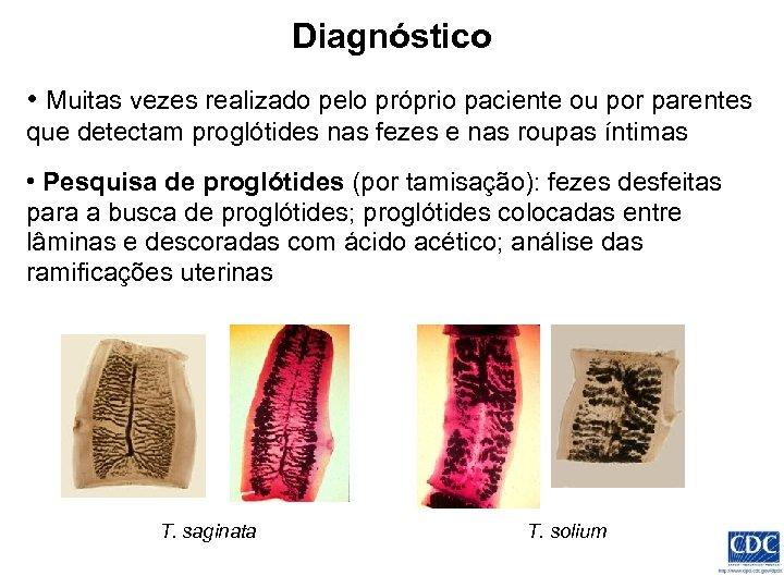 Diagnóstico • Muitas vezes realizado pelo próprio paciente ou por parentes que detectam proglótides