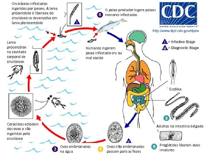Crustáceos infectados ingeridos por peixes. A larva procercóide é liberada do crsutáceo se desenvolve