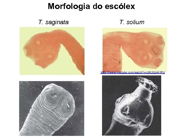 Morfologia do escólex T. saginata T. solium http: //www. youtube. com/watch? v=URLYUU 4 -YPU