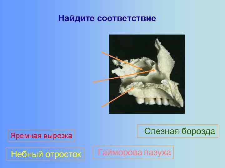 Найдите соответствие Яремная вырезка Небный отросток Слезная борозда Гайморова пазуха