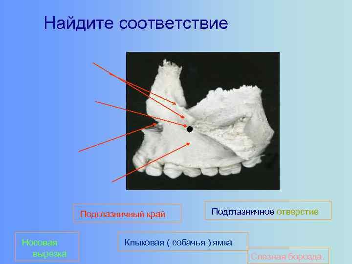Найдите соответствие Подглазничный край Носовая вырезка Подглазничное отверстие Клыковая ( собачья ) ямка Слезная