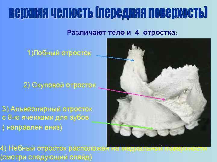 Различают тело и 4 отростка: 1)Лобный отросток 2) Скуловой отросток 3) Альвеолярный отросток с