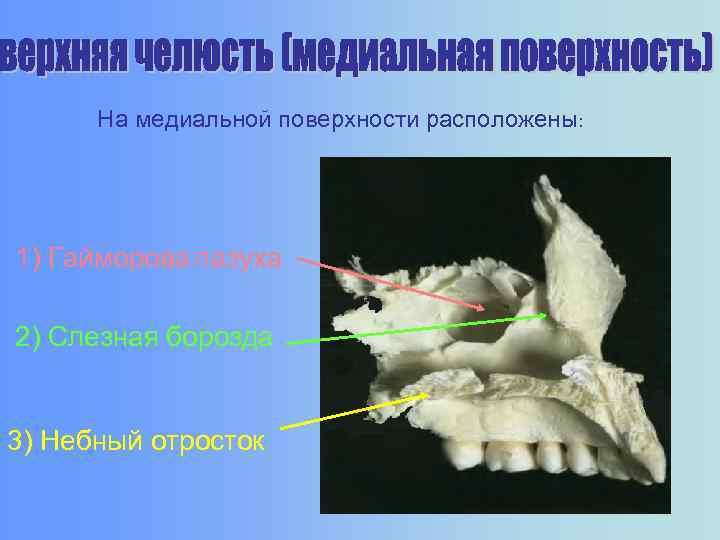 На медиальной поверхности расположены: 1) Гайморова пазуха 2) Слезная борозда 3) Небный отросток