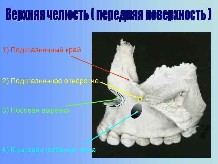 1) Подглазничный край 2) Подглазничное отверстие 3) Носовая вырезка 4) Клыковая (собачья) ямка