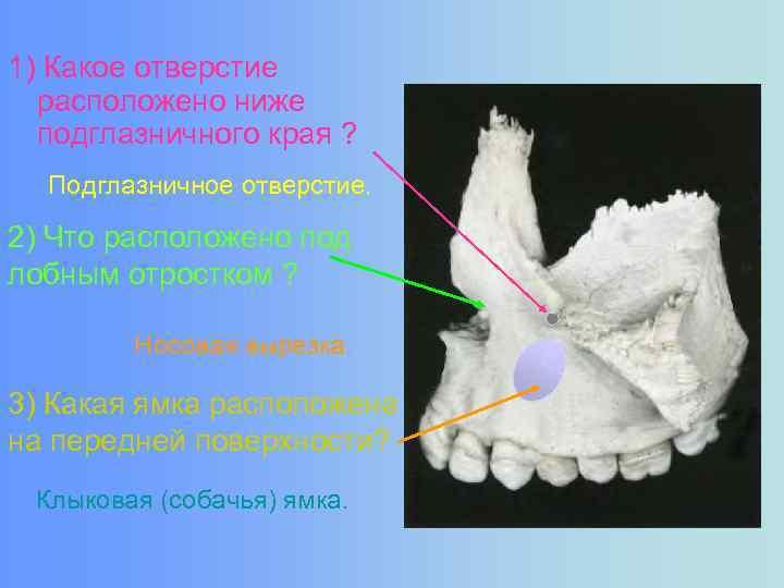 1) Какое отверстие расположено ниже подглазничного края ? Подглазничное отверстие. 2) Что расположено под
