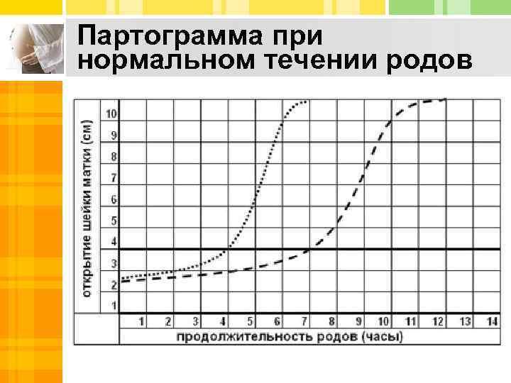 Партограмма при нормальном течении родов