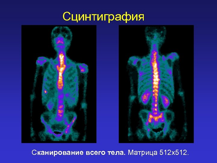 Сцинтиграфия Сканирование всего тела. Матрица 512 х512.