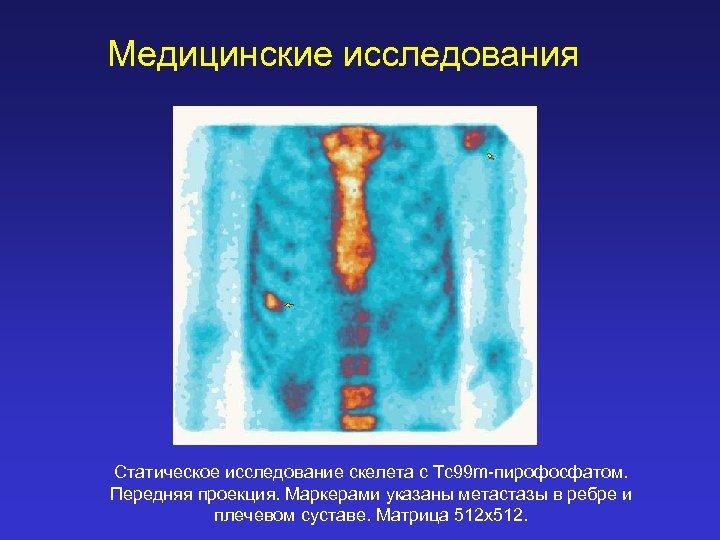 Медицинские исследования Статическое исследование скелета с Tc 99 m-пирофосфатом. Передняя проекция. Маркерами указаны метастазы