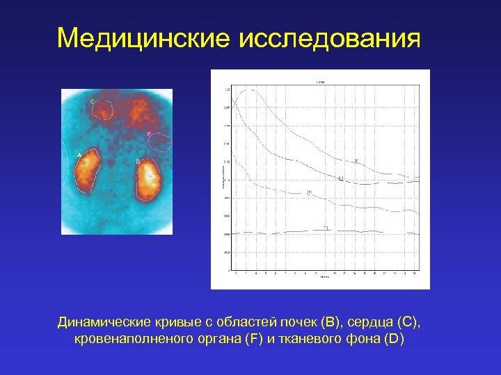Медицинские исследования Динамические кривые с областей почек (B), сердца (C), кровенаполненого органа (F) и