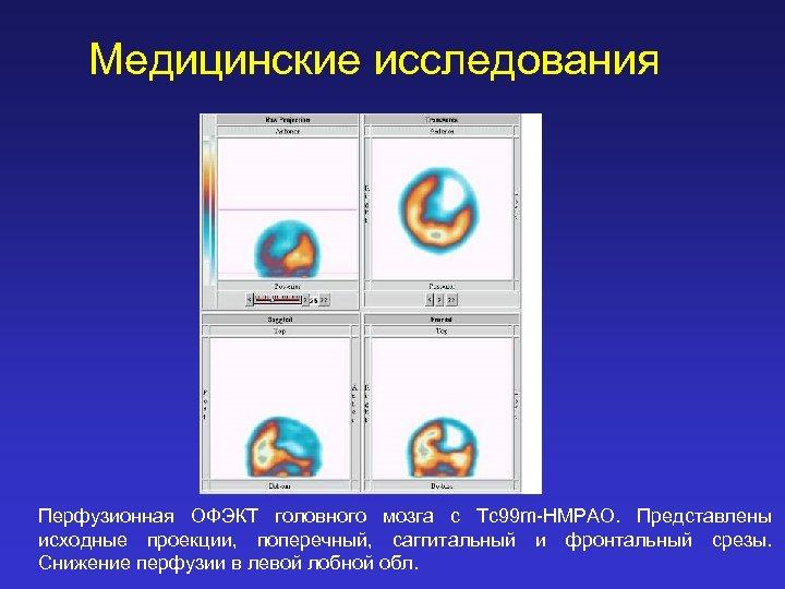 Медицинские исследования Перфузионная ОФЭКТ головного мозга с Tc 99 m-HMPAO. Представлены исходные проекции, поперечный,