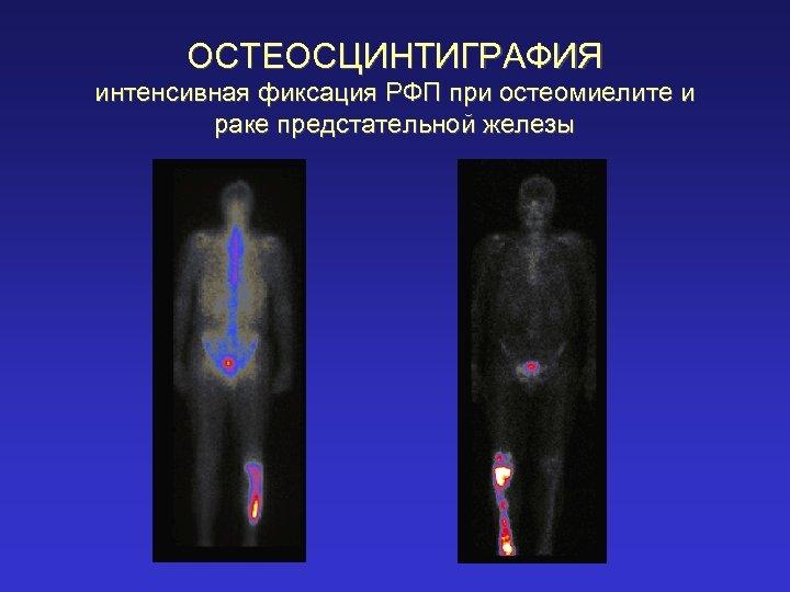 ОСТЕОСЦИНТИГРАФИЯ интенсивная фиксация РФП при остеомиелите и раке предстательной железы