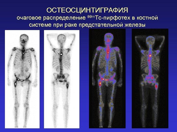 ОСТЕОСЦИНТИГРАФИЯ очаговое распределение 99 m. Tc-пирфотех в костной системе при раке предстательной железы