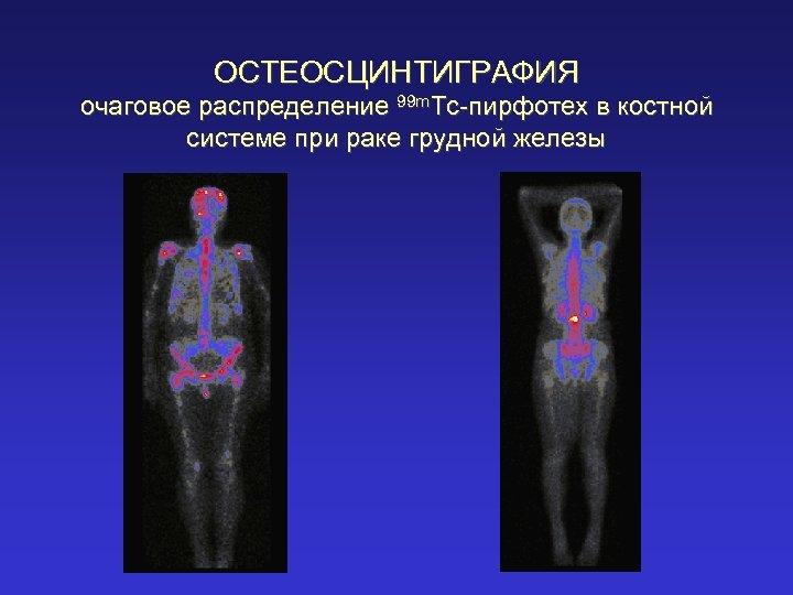 ОСТЕОСЦИНТИГРАФИЯ очаговое распределение 99 m. Tc-пирфотех в костной системе при раке грудной железы