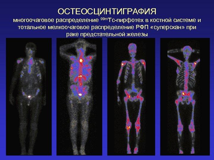 ОСТЕОСЦИНТИГРАФИЯ многоочаговое распределение 99 m. Tc-пирфотех в костной системе и тотальное мелкоочаговое распределение РФП