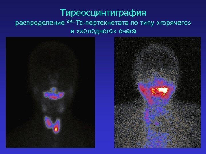 Тиреосцинтиграфия распределение 99 m. Tc-пертехнетата по типу «горячего» и «холодного» очага