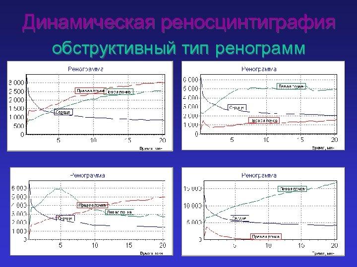 Динамическая реносцинтиграфия обструктивный тип ренограмм