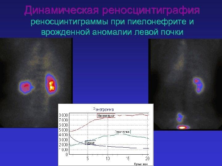 Динамическая реносцинтиграфия реноcцинтиграммы при пиелонефрите и врожденной аномалии левой почки