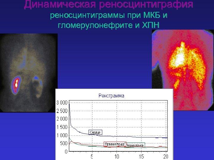 Динамическая реносцинтиграфия реносцинтиграммы при МКБ и гломерулонефрите и ХПН