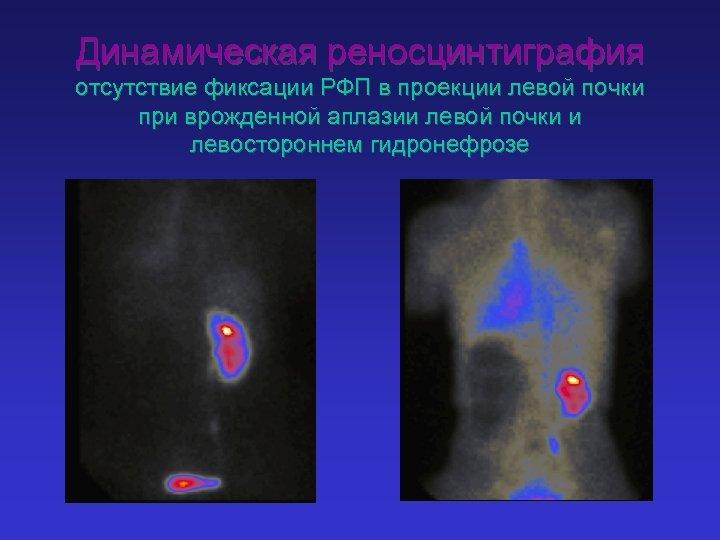 Динамическая реносцинтиграфия отсутствие фиксации РФП в проекции левой почки при врожденной аплазии левой почки