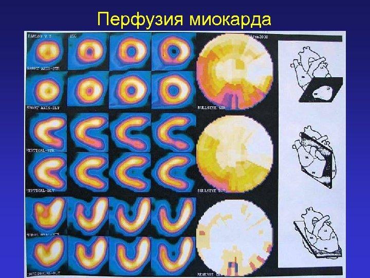 Перфузия миокарда