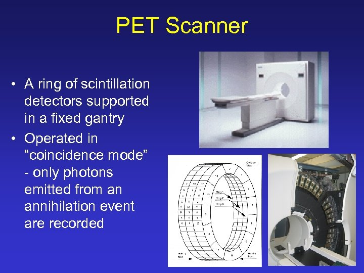 PET Scanner • A ring of scintillation detectors supported in a fixed gantry •