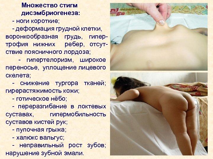 Множество стигм дисэмбриогенеза: - ноги короткие; - деформация грудной клетки, воронкообразная грудь, гипертрофия