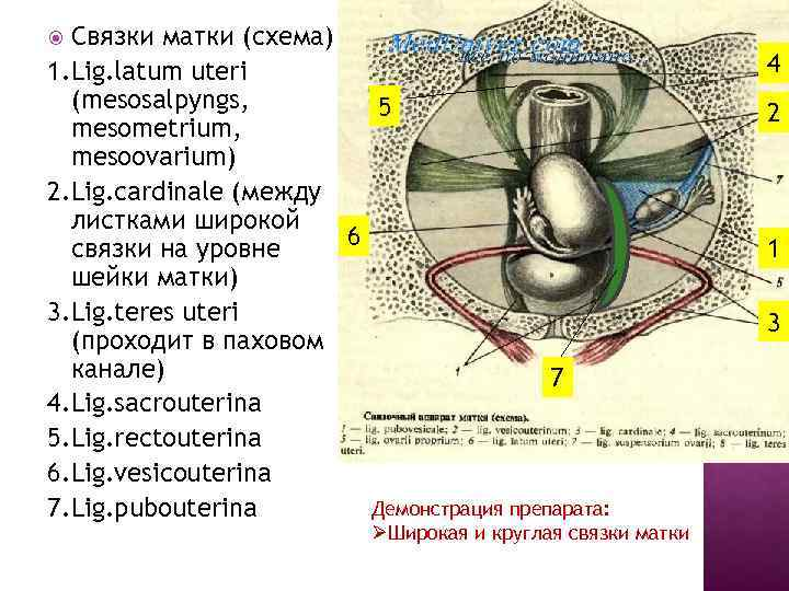 Связки матки (схема) 1. Lig. latum uteri (mesosalpyngs, 5 mesometrium, mesoovarium) 2. Lig. cardinale