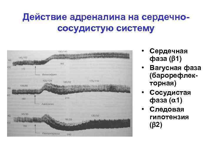 Действие адреналина на сердечнососудистую систему • Сердечная фаза ( 1) • Вагусная фаза (барорефлекторная)