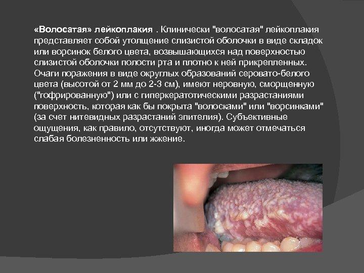 «Волосатая» лейкоплакия. Клинически