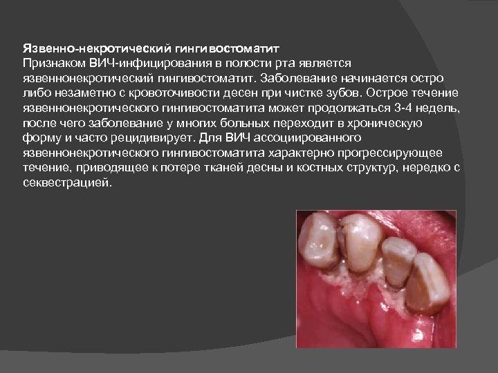 Язвенно-некротический гингивостоматит Признаком ВИЧ-инфицирования в полости рта является язвеннонекротический гингивостоматит. Заболевание начинается остро либо