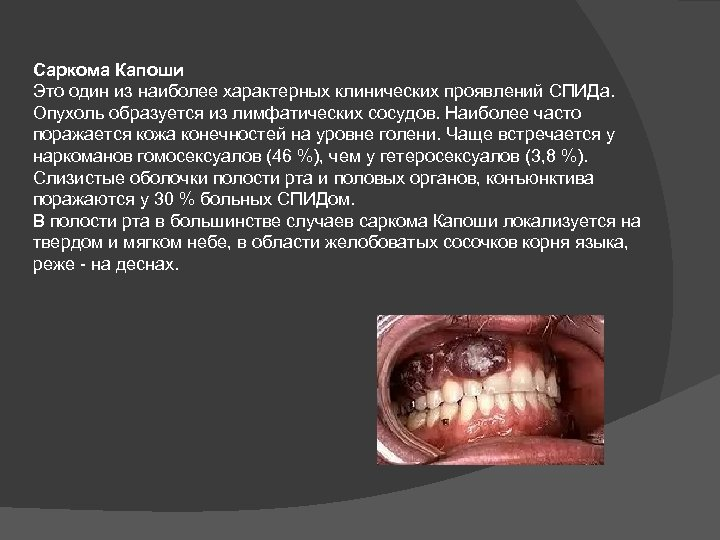 Саркома Капоши Это один из наиболее характерных клинических проявлений СПИДа. Опухоль образуется из лимфатических