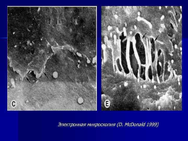 Электронная микроскопия (D. Mc. Donald 1999)
