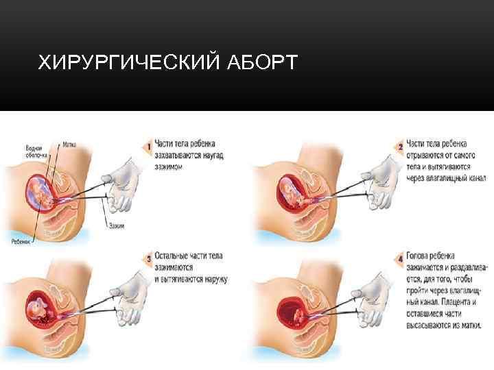 Секс После Аборта Через Неделю Чем Грозит