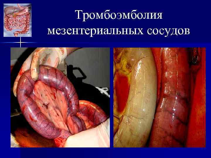 Тромбоэмболия мезентериальных сосудов