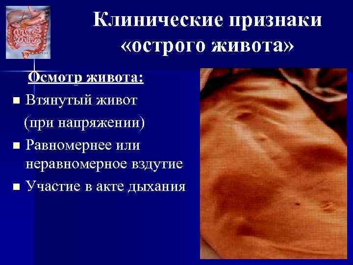 Клинические признаки «острого живота» Осмотр живота: n Втянутый живот (при напряжении) n Равномернее или