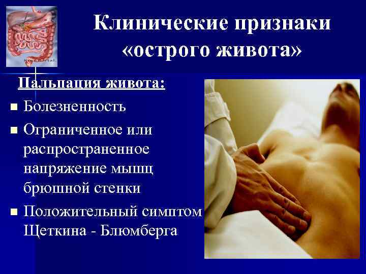 Клинические признаки «острого живота» Пальпация живота: n Болезненность n Ограниченное или распространенное напряжение мышц