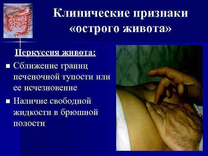 Клинические признаки «острого живота» Перкуссия живота: n Сближение границ печеночной тупости или ее исчезновение