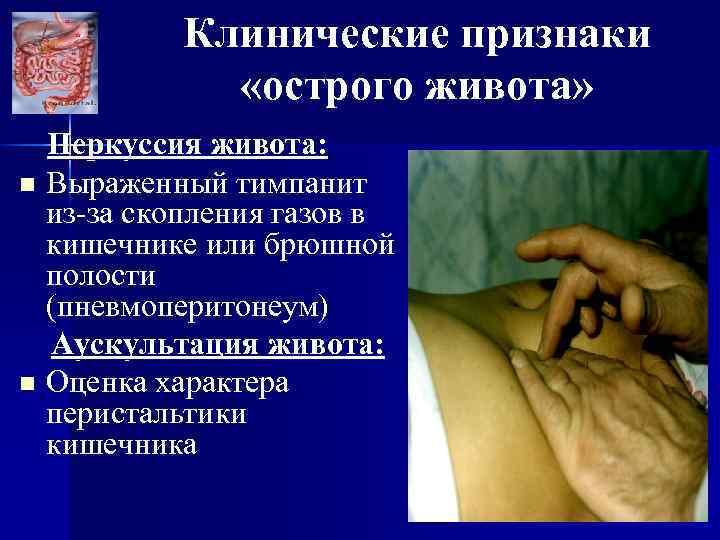 Клинические признаки «острого живота» Перкуссия живота: n Выраженный тимпанит из-за скопления газов в кишечнике