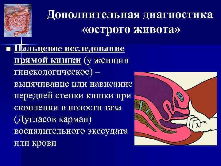 Дополнительная диагностика «острого живота» n Пальцевое исследование прямой кишки (у женщин гинекологическое) – выпячивание