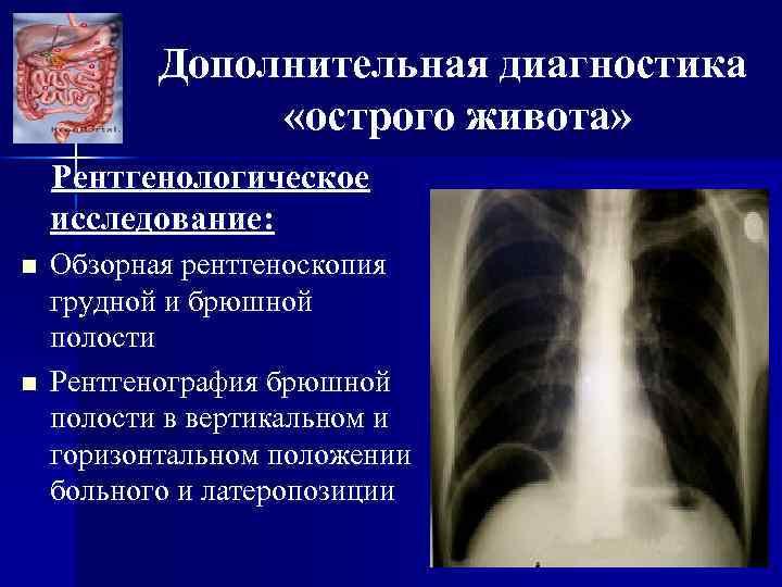 Дополнительная диагностика «острого живота» Рентгенологическое исследование: n n Обзорная рентгеноскопия грудной и брюшной полости