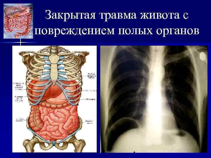 Закрытая травма живота с повреждением полых органов