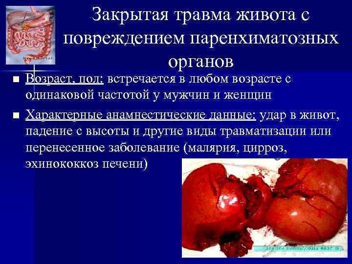 Закрытая травма живота с повреждением паренхиматозных органов n n Возраст, пол: встречается в любом