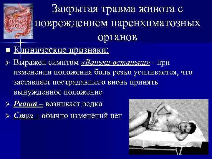 Закрытая травма живота с повреждением паренхиматозных органов n Клинические признаки: Ø Выражен симптом «Ваньки-встаньки»
