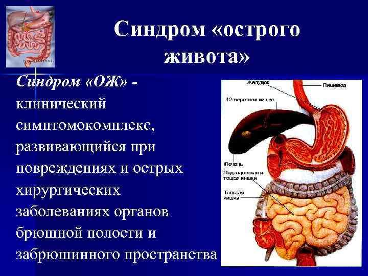 Синдром «острого живота» Синдром «ОЖ» клинический симптомокомплекс, развивающийся при повреждениях и острых хирургических заболеваниях