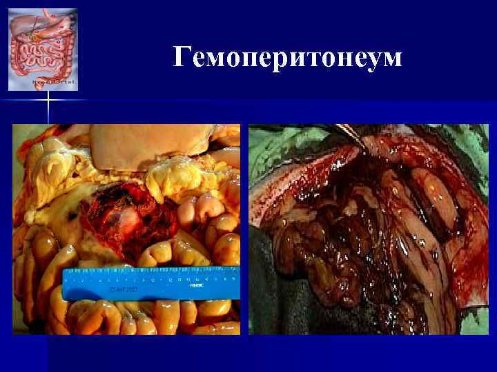 Гемоперитонеум
