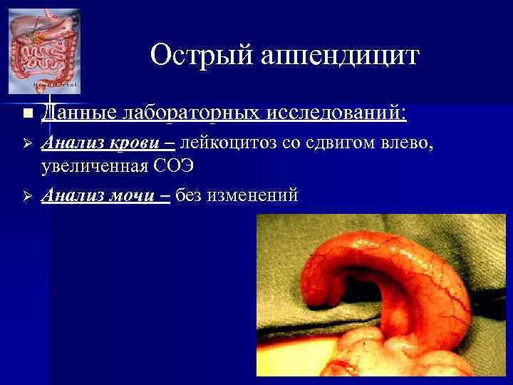 Острый аппендицит n Данные лабораторных исследований: Ø Анализ крови – лейкоцитоз со сдвигом влево,