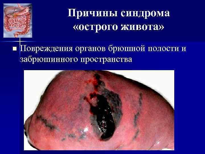 Причины синдрома «острого живота» n Повреждения органов брюшной полости и забрюшинного пространства