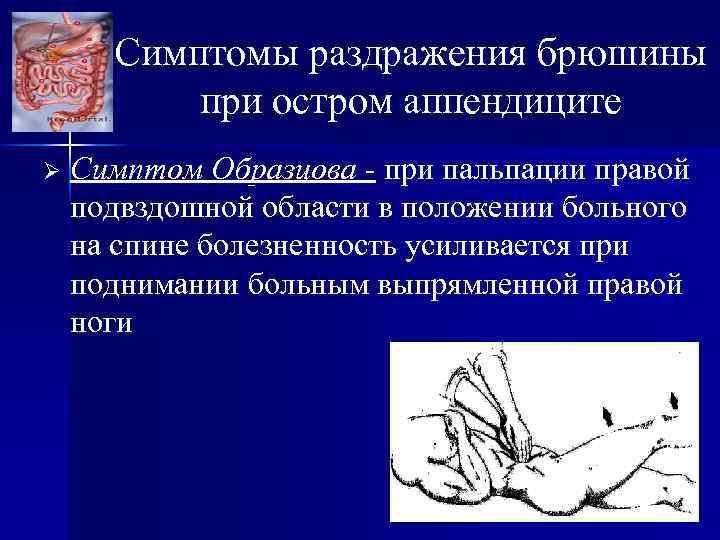 Симптомы раздражения брюшины при остром аппендиците Ø Симптом Образцова - при пальпации правой подвздошной